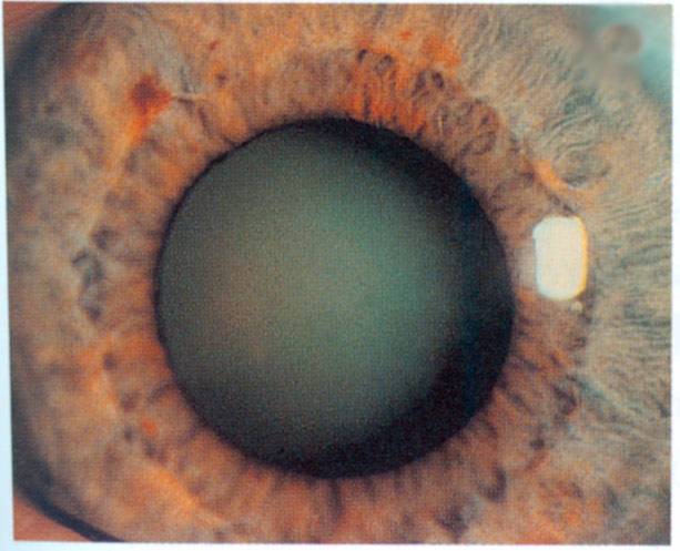 Katarakt Auge