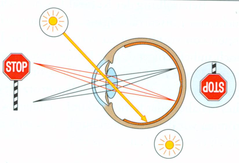 katarakt-symptome1